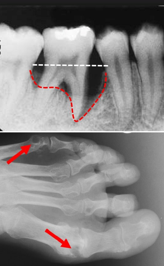jawbone loss predates rheumatoid arthritis