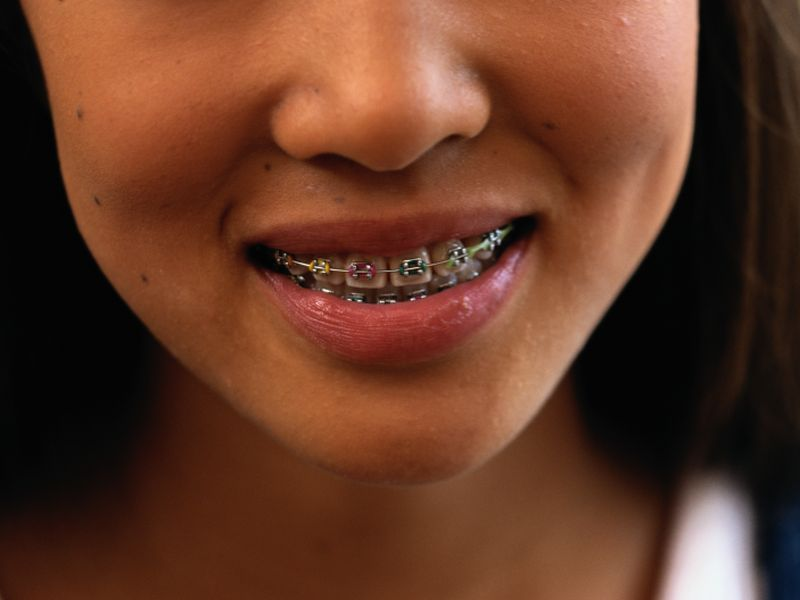 Need Braces Say Goodbye To Metal Mouth Taunts