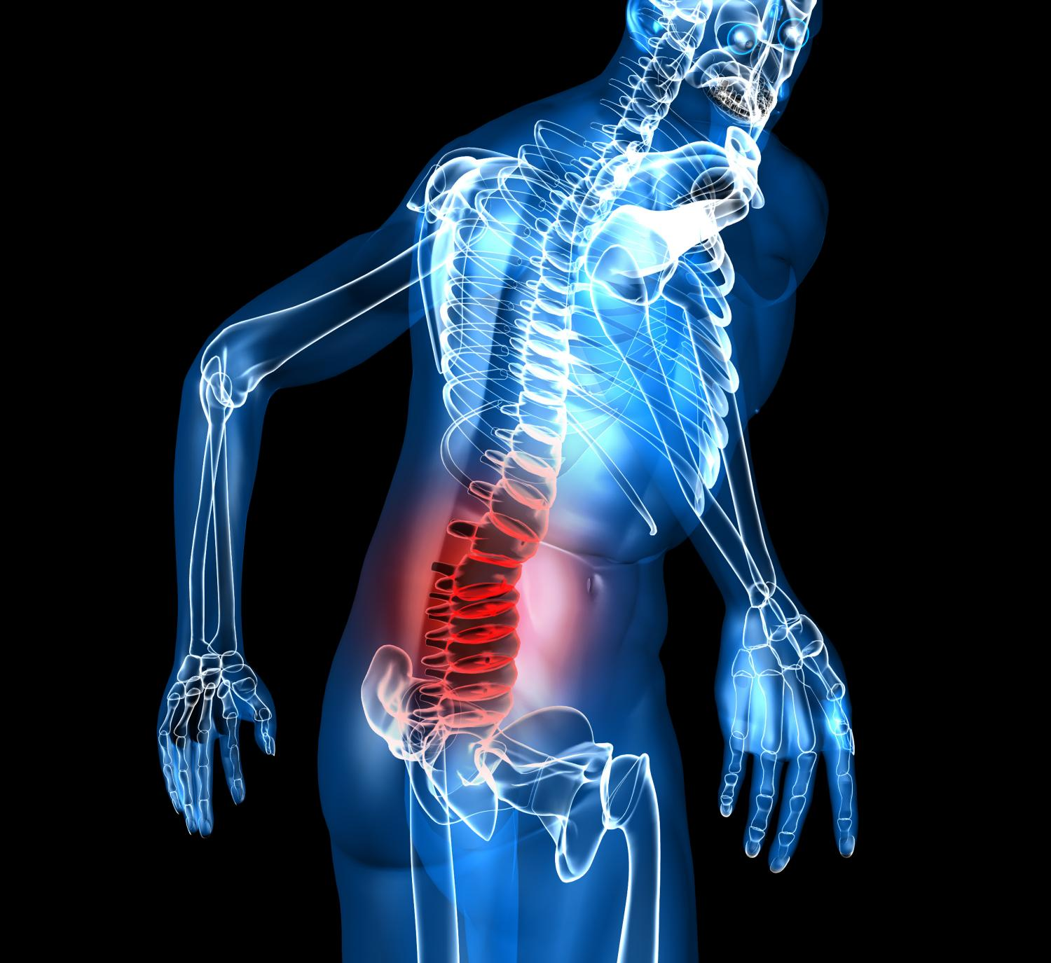 Placebo And Valium Are Equally Effective For Acute Lower Back Pain