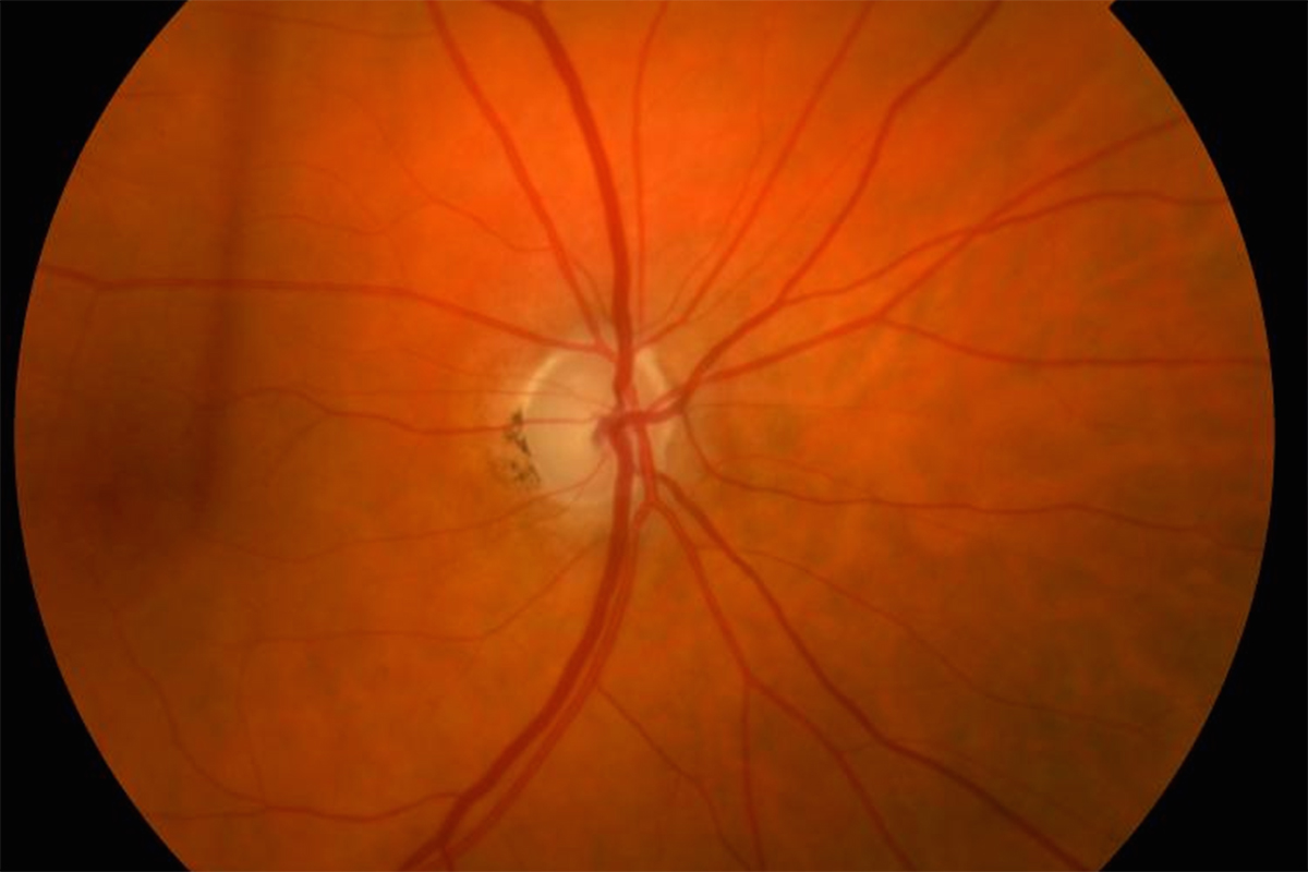potential predictor of glaucoma damage identified