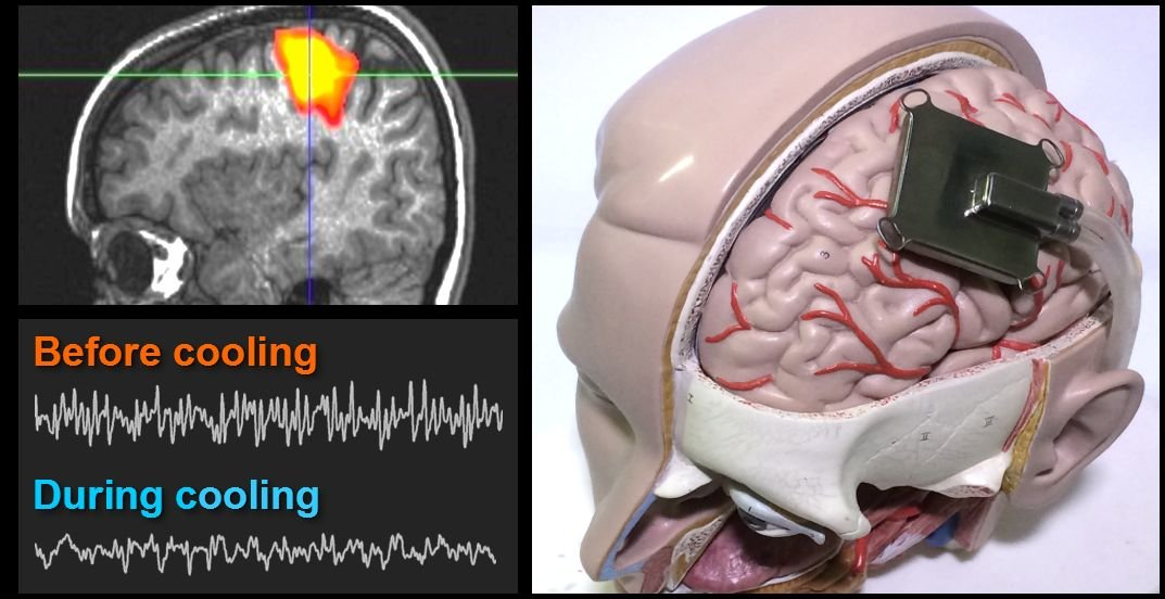 Simulating a brain-cooling treatment that could one day ease epilepsy