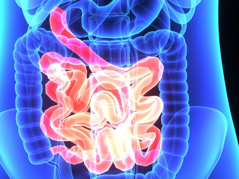 Vagus Nerve Stimulation Promising In Crohns Disease