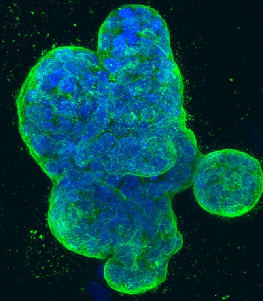 First immunotherapy success for triple-negative breast cancer