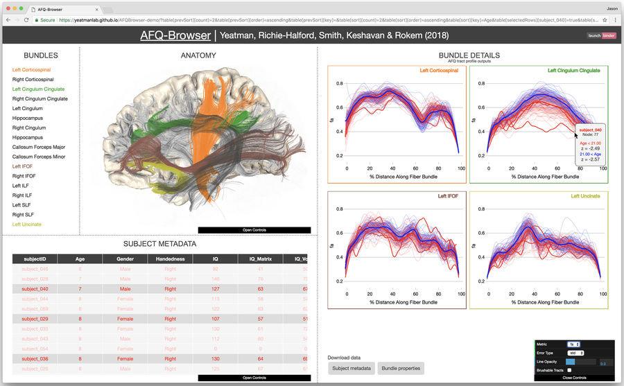 Democratizing science: Researchers make neuroscience experiments ...