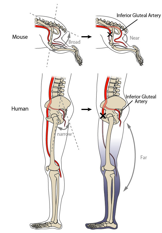 Humans Risked Limb Ischemia In Exchange For Bipedal Walking