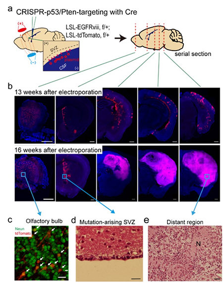 Figure 2. Glioma progression in genome edited mice carrying GBM mutations  in the SVZ