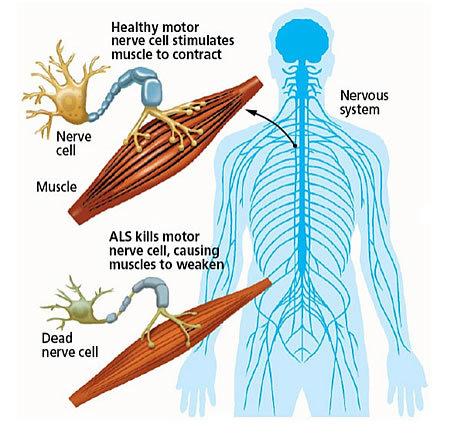 Researchers Close To Understanding Disease Mechanisms Of Als