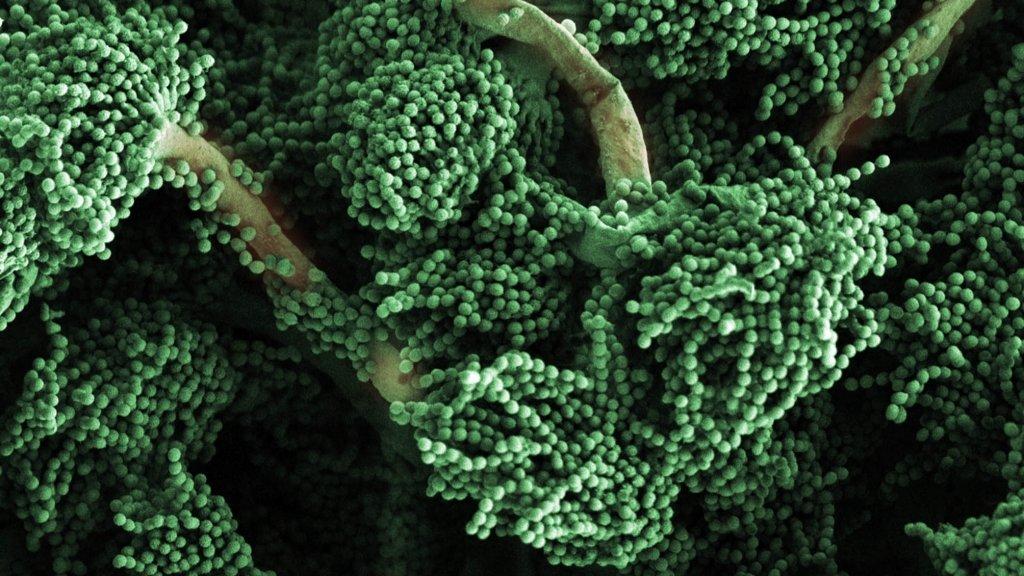 new insight into body s response to killer fungus