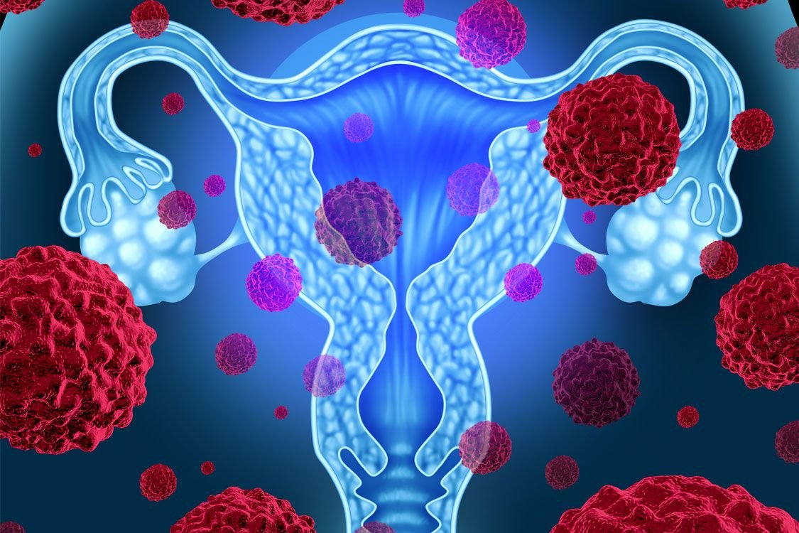 the danger of ovarian cancer in gynecology Find out about the tests used to diagnose ovarian cancer.