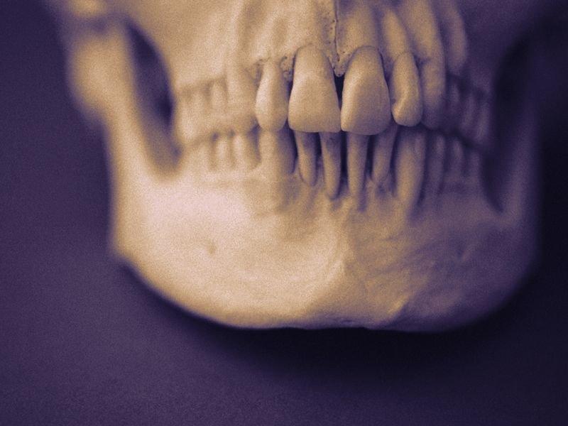 3 D Printed Templates Aid Mandibular Fracture Repair