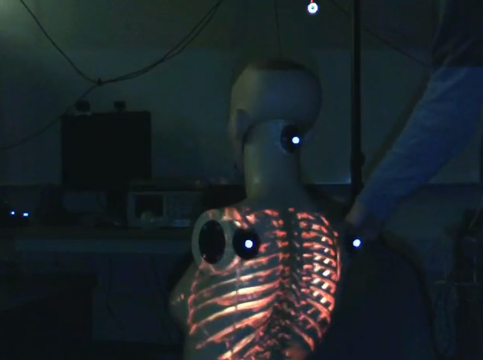 Augmented Reality System Lets Doctors See Under Patients Skin