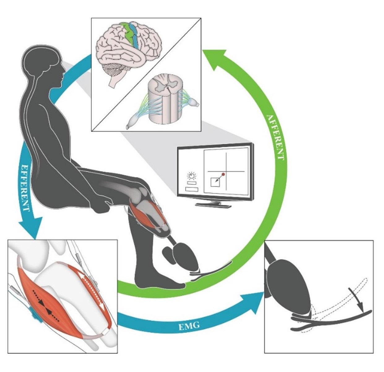 Картинки по запросу bionic prosthesis with precise coordination of movements