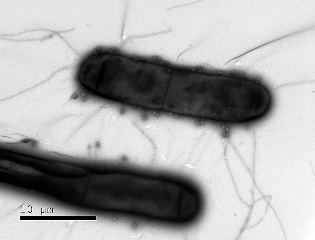 Study uncovering multiple new, unusual bacterial immune defense mechanisms could pave the way toward new biotech tools