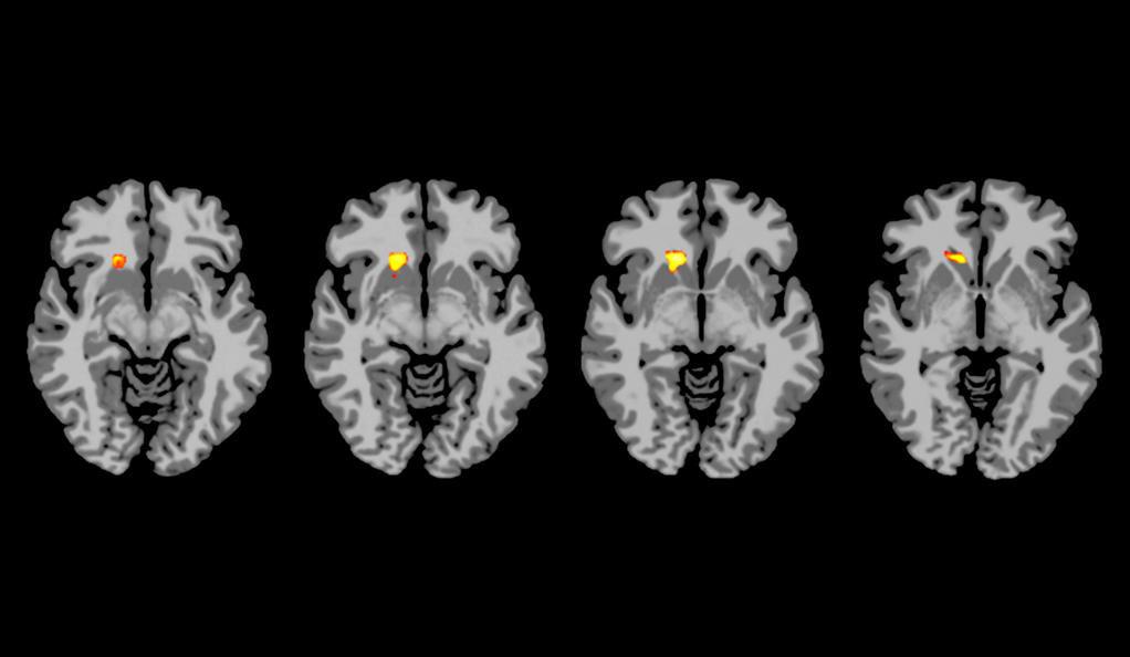 Yale study on depression