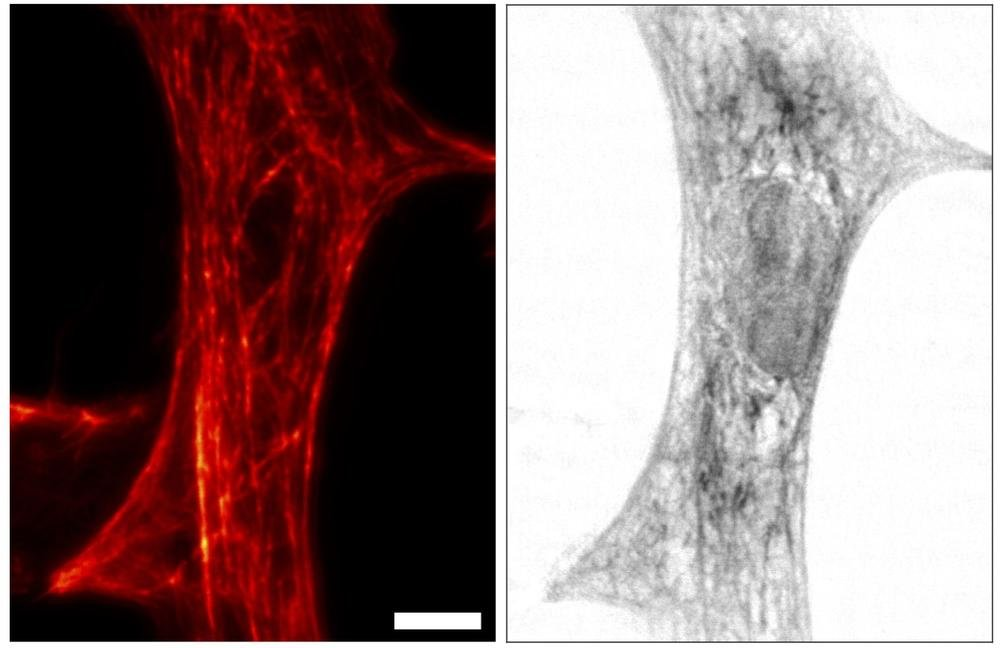 Combined X Ray And Fluorescence Microscope Reveals Unseen