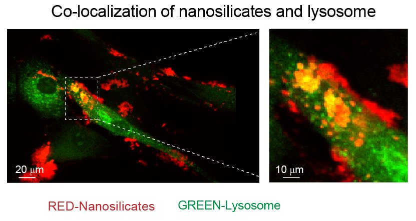 Flaxseed-like particles can now grow bone, cartilage tissues for humans