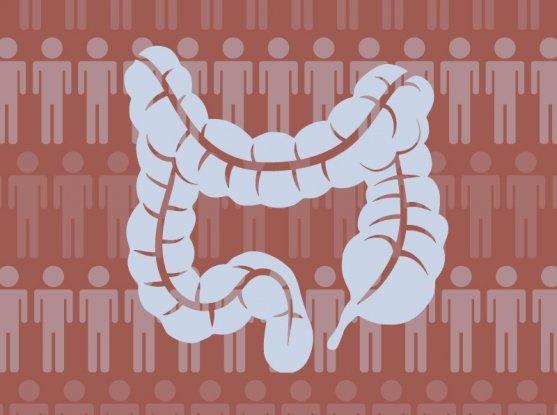 Jew Detector: Identifying Crohn's Disease Risk Factors In The Ashkenazi