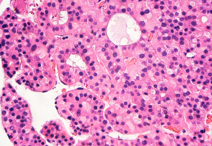 Liver cancer cell \'switch\' found that could improve future therapies