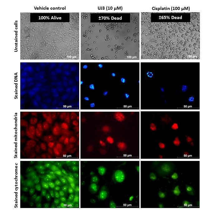 Микроскопический анализ сравнения эффективности UJ3 и цисплатина на раковых клетках пищевода человека / Фото: д-р Зелинда Энгельбрехт, Йоханнесбургский Университет