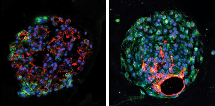 New Found Stem Cell Helps Regenerate Lung Tissue After