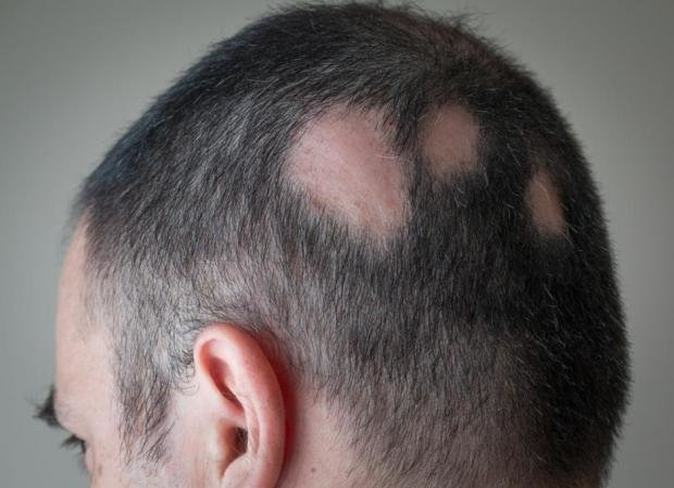 facial hair causes loss What