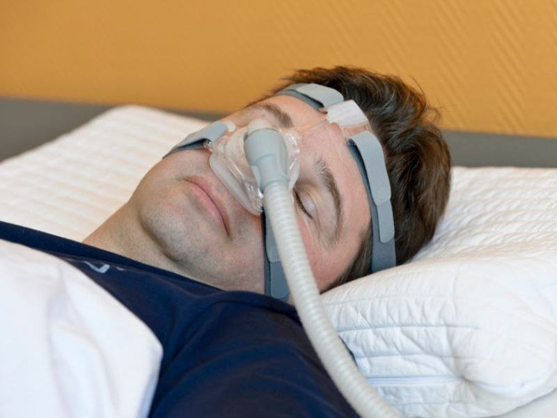 severe sleep apnea during rem sleep tied to acute cv