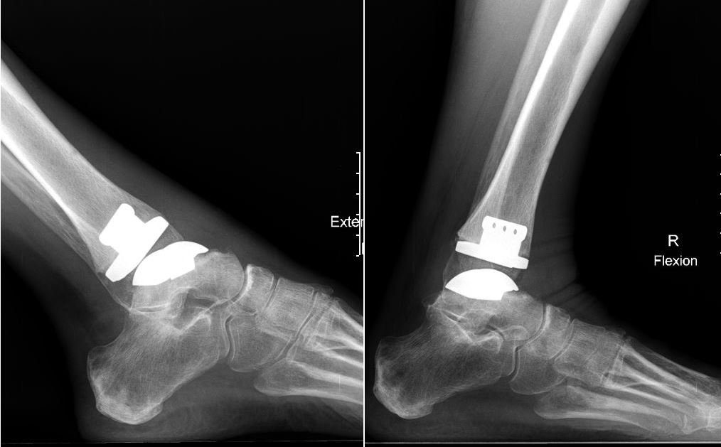 total ankle arthroplasty offers patients greater range of motion and