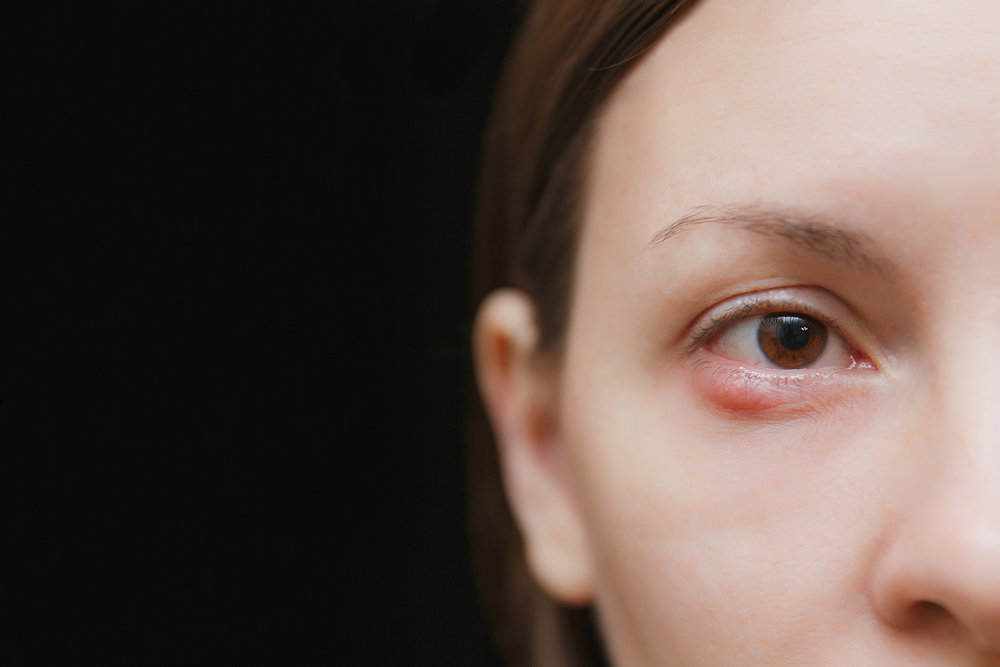 What Causes Styes And How To Get Rid Of Them