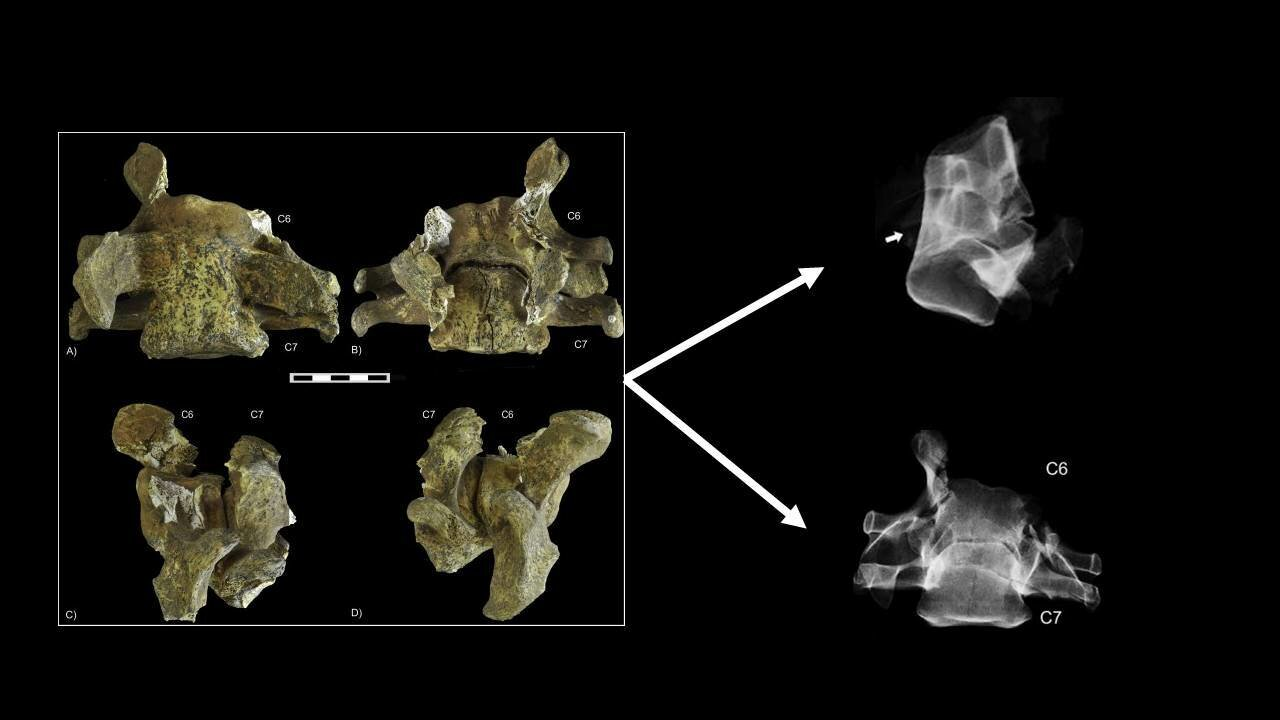 First evidence for an unusual congenital pathology in cave bears