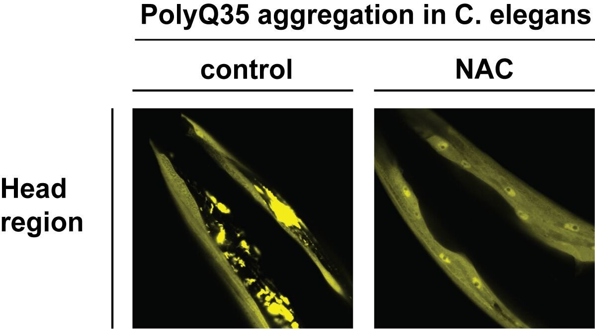 QnA VBage Protein complex may help prevent neurodegenerative diseases