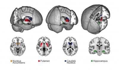 Video gamers size of brain structures predicts success ccuart Image collections