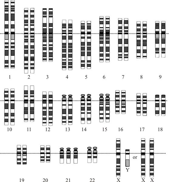 Karyotype for trisomy Down syndrome. Notice the three copies of chromosome  21. Courtesy: National Human Genome Research Institute. A blood test ...