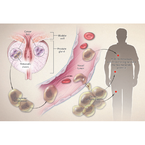 Стандарт лечения рака предстательной железы