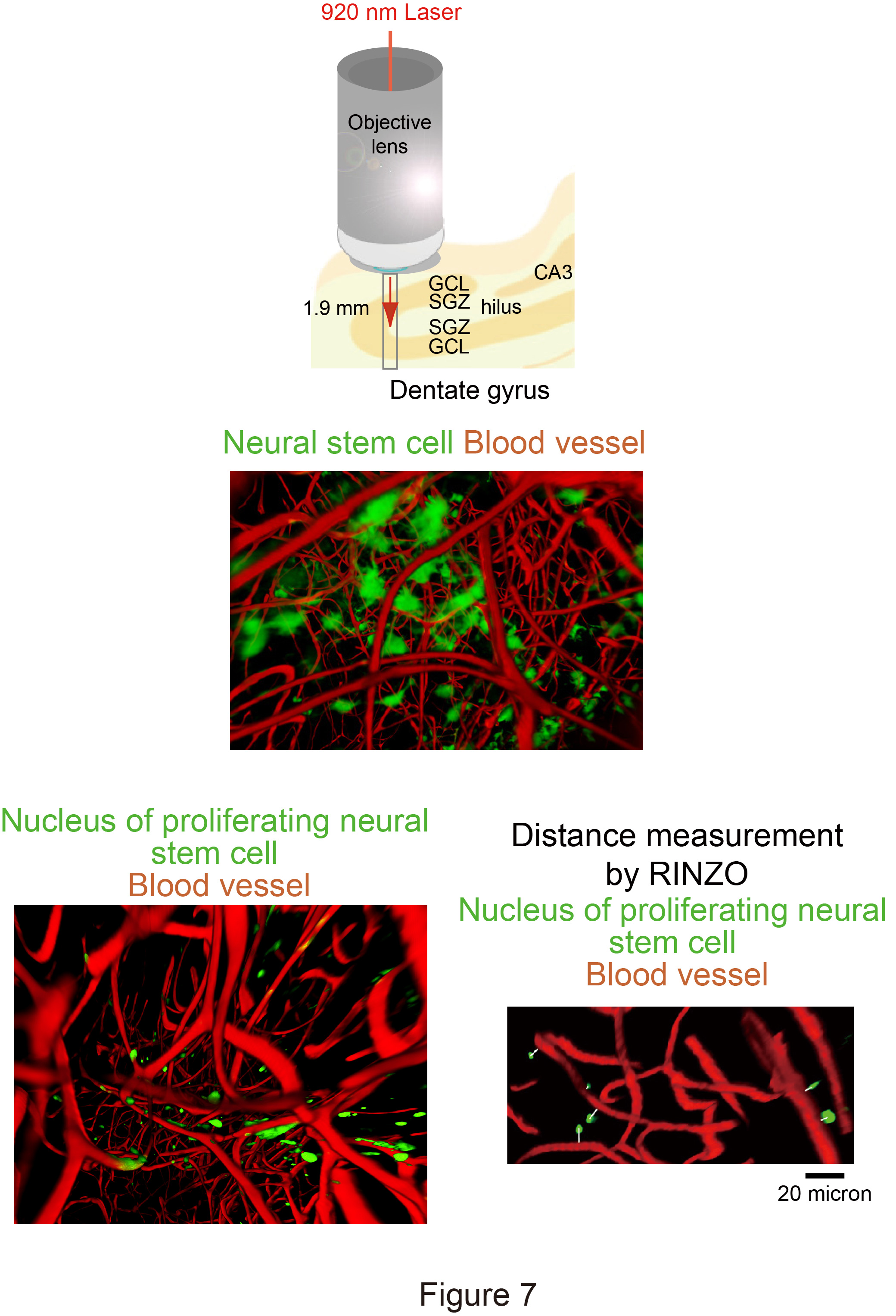 New chemical reagent turns mouse brain transparent ccuart Image collections