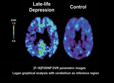 Imaging technique IDs plaques, tangles in brains of ...