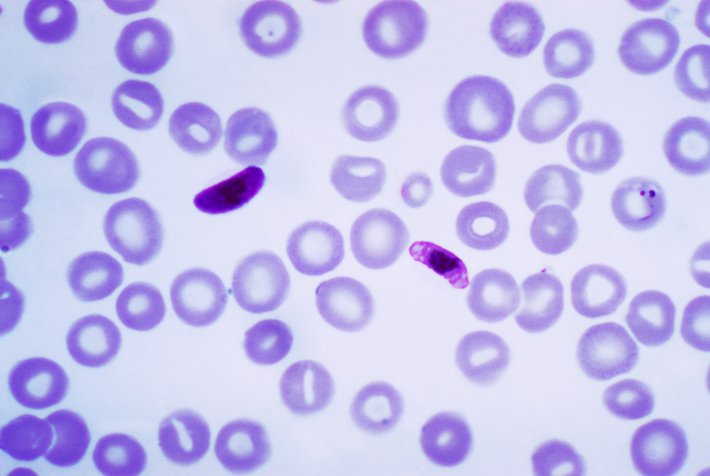 Image result for plasmodium