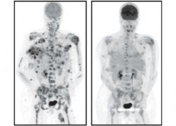 Ross Around Me >> SLAC X-rays help discover new drug against melanoma