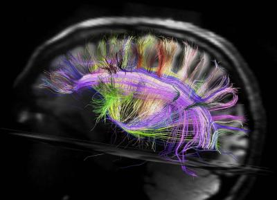 wiring a no brainer scans reveal astonishingly simple 3d grid brain wiring a no brainer scans reveal astonishingly simple 3d grid structure