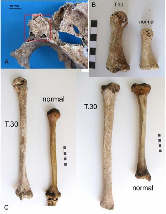 Paleopathologist finds gigantism in third century Roman skeleton