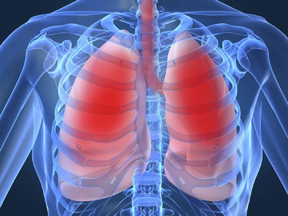 rare lung disease