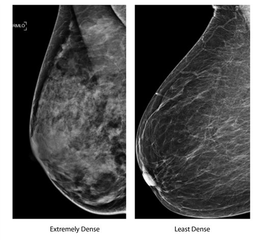 Breast cancer free mammogram website