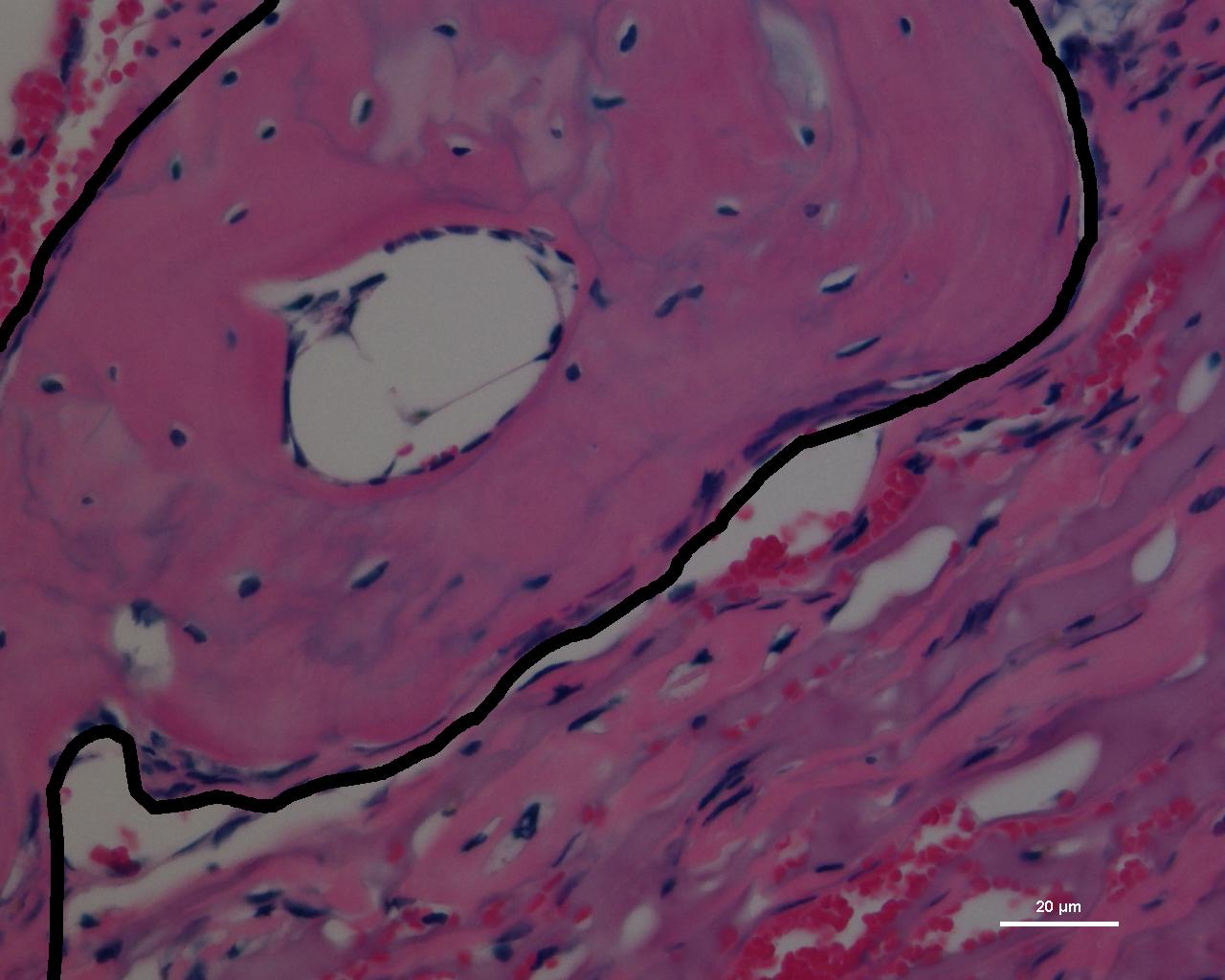 Stem Cell Growing Surface Enables Bone Repair