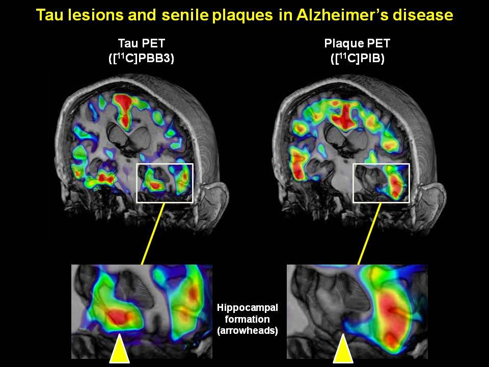 alzeihmers disease What is alzheimer's take the alzheimer's disease quiz and learn the stages, symptoms, signs, treatment, and early signs learn about research and treatment.