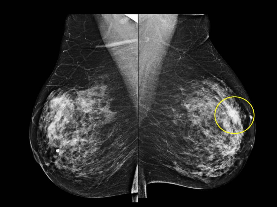 Mammography screening intervals may affect breast cancer ...