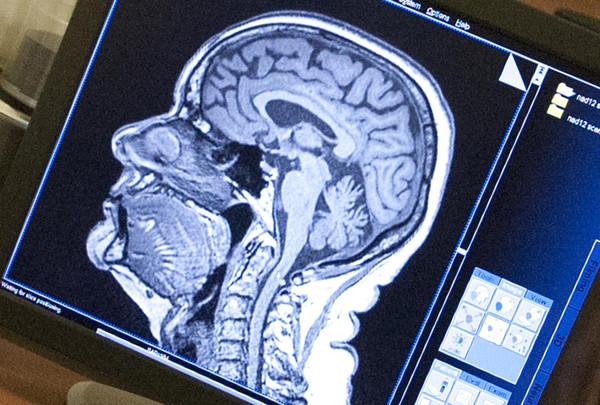 Memory boosting capsules photo 3