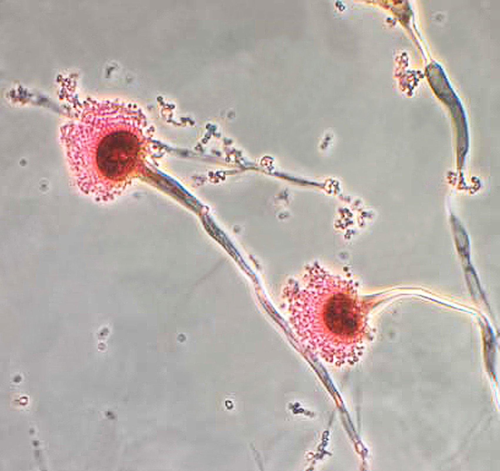 chemical probe finds fungal organism function  activity