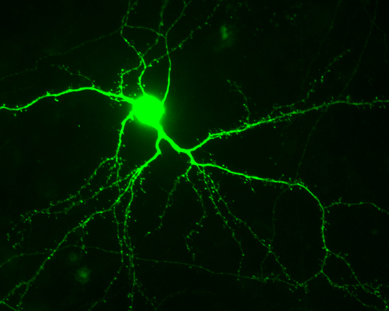 Chemical Reaction Keeps Stroke Damaged Brain From