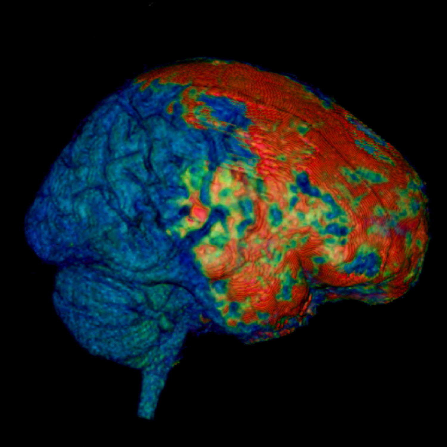 Researchers film early concussion damage describe brains response researchers film early concussion damage describe brains response to injury w video ccuart Choice Image