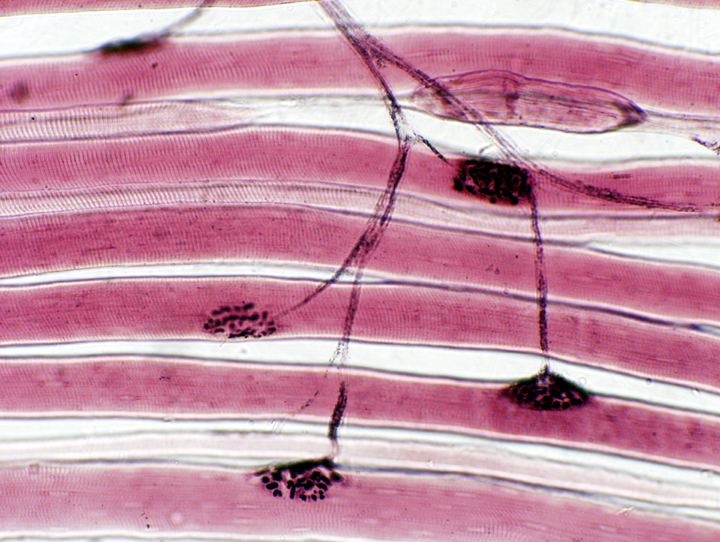 Free Standing 3d Skeletal Muscle Constructs Created In The Lab