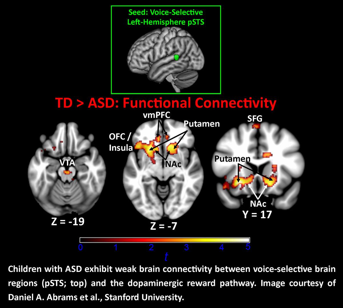 Autism Behaviors Show Unique Brain >> Voices May Not Trigger Brain S Reward Centers In Children With